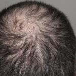 kreisrunder haarausfall