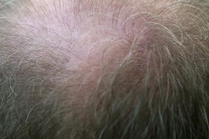 Haarwuchsmittel - Haarausfall stoppen und Haarwuchs beschleunigen