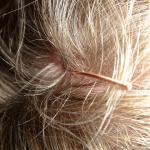 Kopfhautjucken und stressbedingter Haarausfall