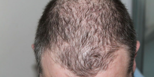 Haarausfall bei Männern